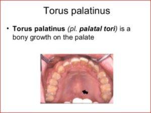 Torus Palatinus Picture 2