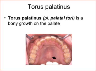 Torus Palatinus Causes Cancer Pain Removal Diagnosis Recovery