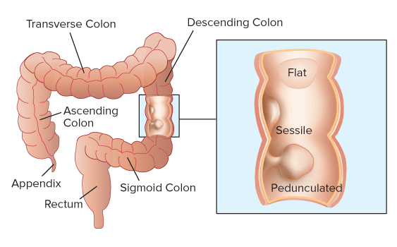 Sessile polyp Picture 1