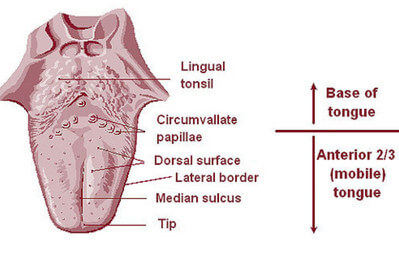 Lingual Tonsil Picture 1