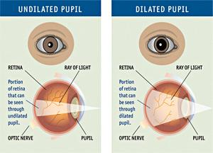 Dilated Pupils Differences