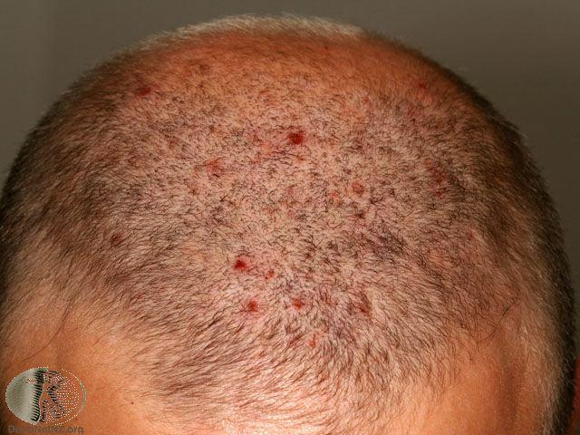 Scalp folliculitis Picture 3