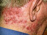 Scalp folliculitis Picture 1