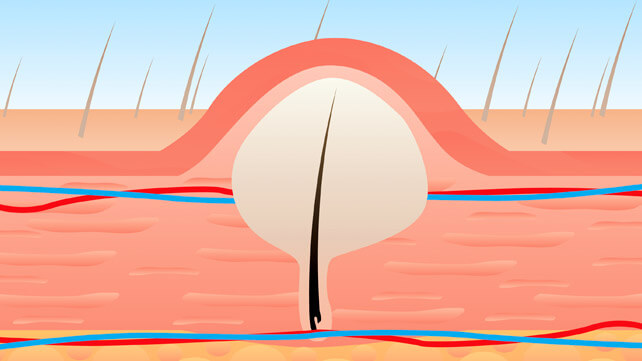 treating and preventing ingrown vaginal hair