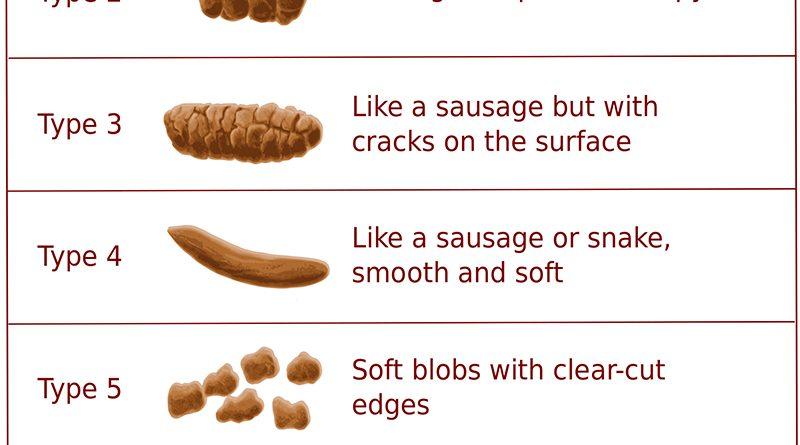 Types of Stool according to Bristol Stool Chart