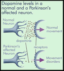 Dopamine levels in a normal neuron and a neuron affected by Parkinson's disease