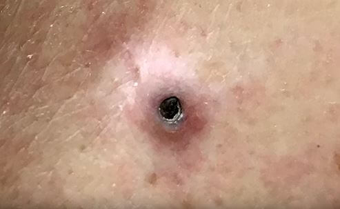 Dilated pore of Winer Pics