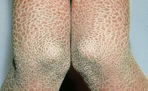 Lamellar Ichthyosis pictures 2