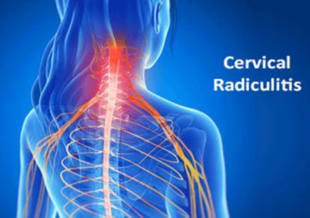 Cervical Radiculitis Images