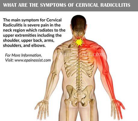 Radiculitis symptoms