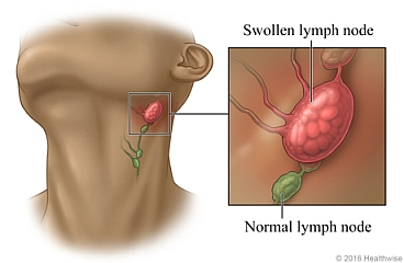 Swollen Lymph Nodes Pictures